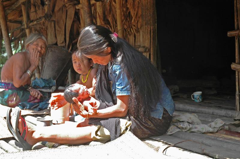 Dieses Neugeborene Mädchen hat nur eine Chance von 40 %, ihren 5. Geburtstag zu erleben, weil medizinische Versorgung, Kenntnis zu Hygiene und häufig Nahrung im Dorf fehlen.